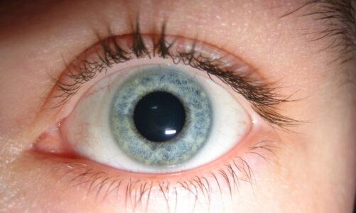 Måske er det ved at være tid til at besøge en øjenlæge?